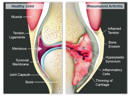 Rheumatoid-Arthritis model