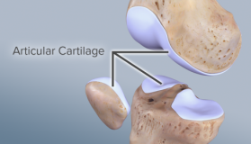 lesion-free-articular-cartilage