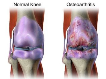 normal vs osteo knee